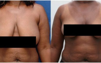 What is a Breast Lift Surgery, Reasons to Do It and Its Types